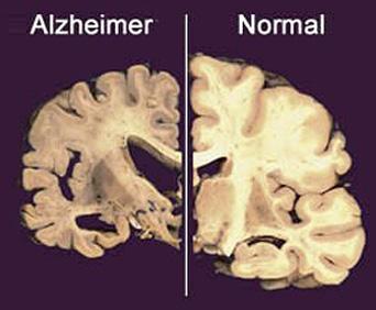 alzheimer_cerebro